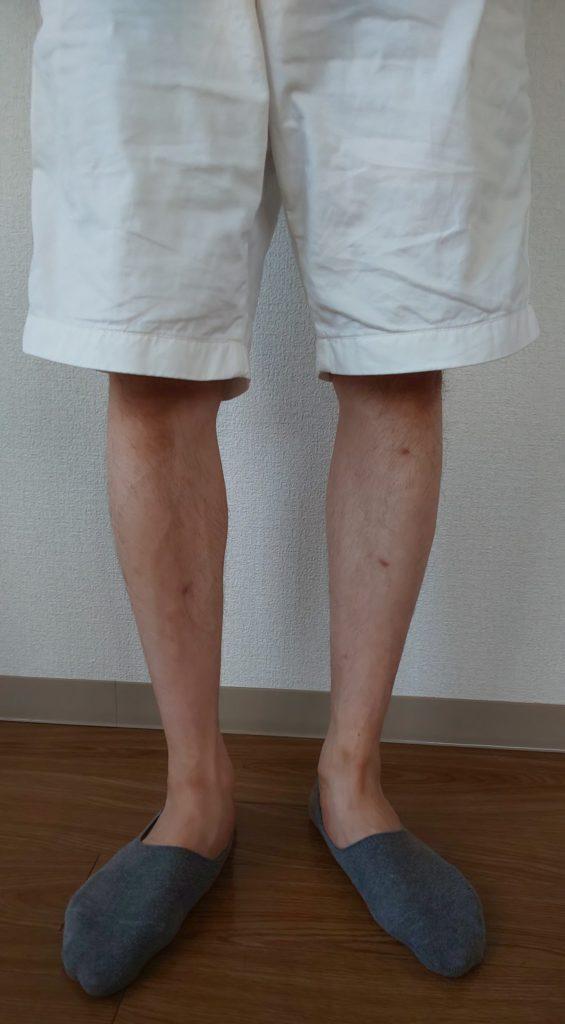 ショートパンツを少し下げて、膝の皿が隠れるようにして履いている写真